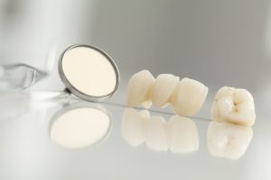 Your Virginia Beach dentist places tooth-colored fillings.